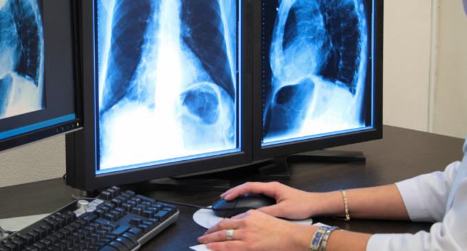 Aparat ultraperformant pentru radioscopie digitală la Spitalul Clinic de Recuperare