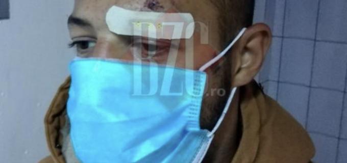 Bătut de polițiștii din Campia Turzii, după ce s-a certat cu un taximetrist