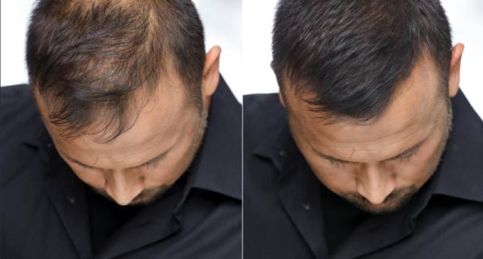 Căderea timpurie a părului – ce măsuri poți lua în funcție de situație